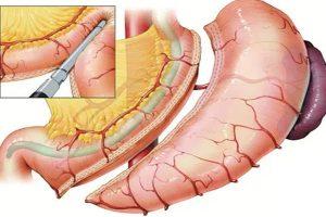 Tüp Mide Ameliyatı Çeşitleri